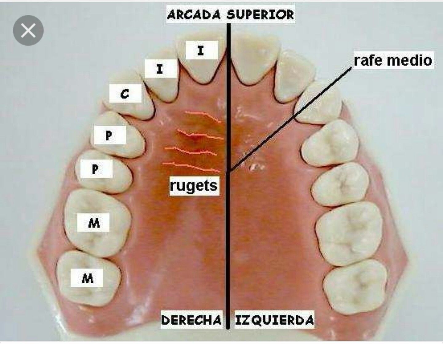 Pin by Ana Belen on anatomia dental | Pinterest