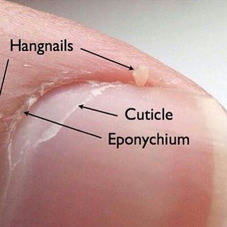 Common Nail Misconception