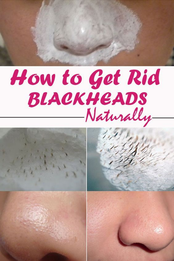 how to clear blackheads naturally