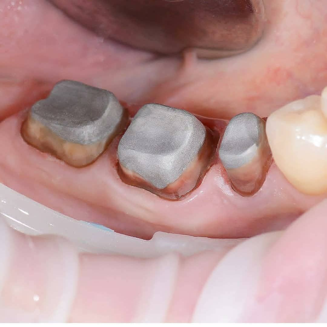 tanden dental staffanstorp