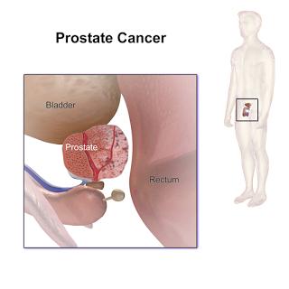 prostata diarrhea treatment