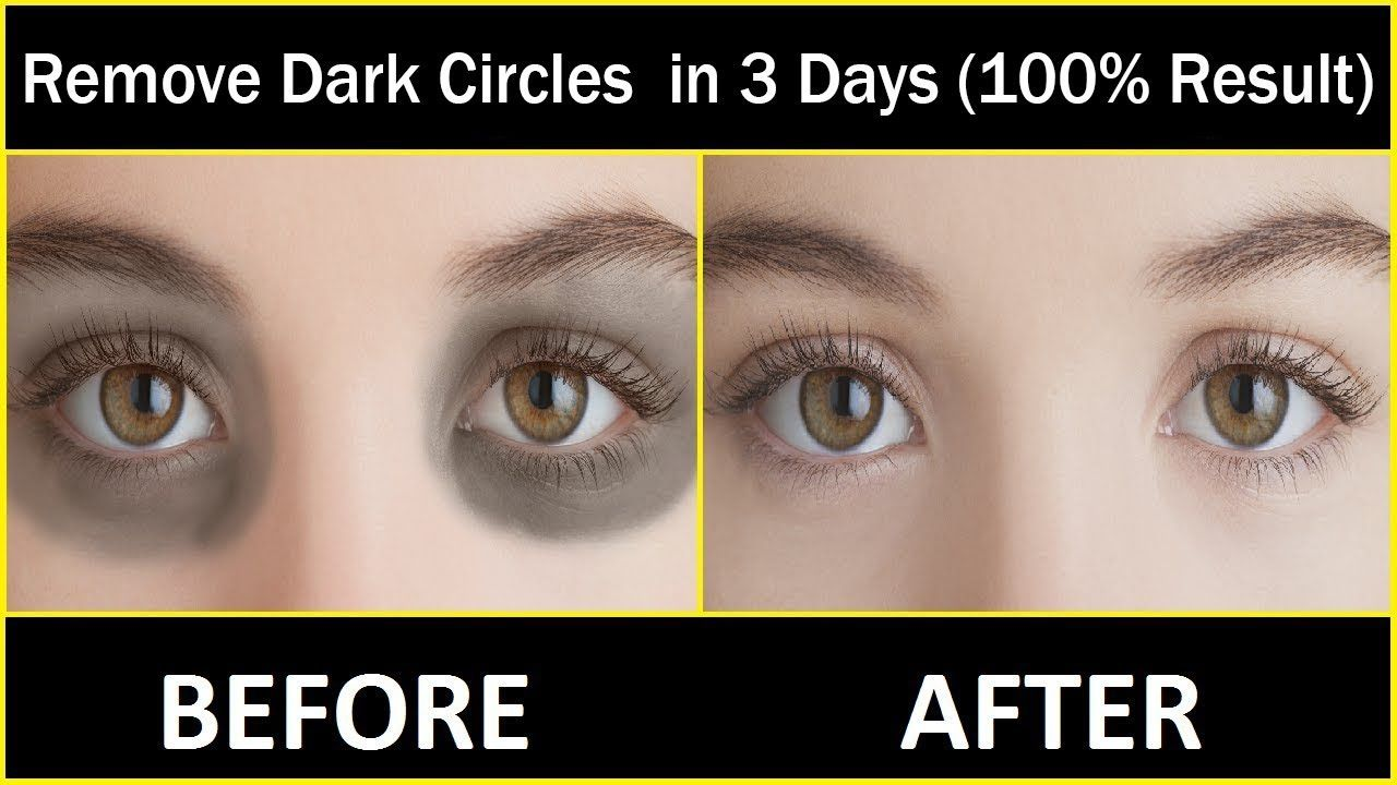 In 3 DAYS Remove Dark Circles Naturally and Permanently ...