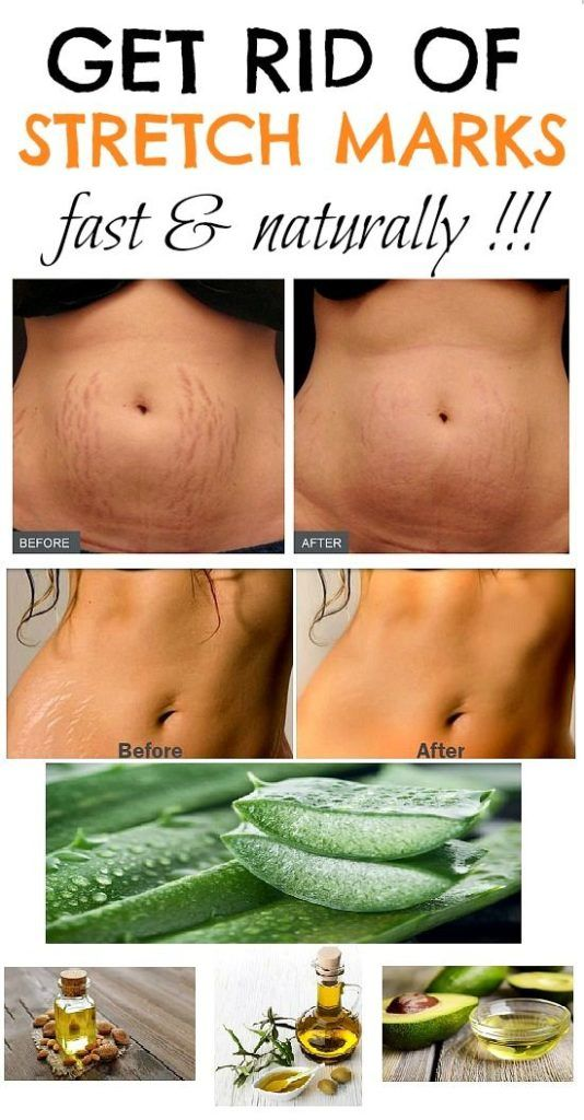 78cc2640498b4197644eaff14b214c69 - How To Get Rid Of Pregnancy Stretch Marks On Belly
