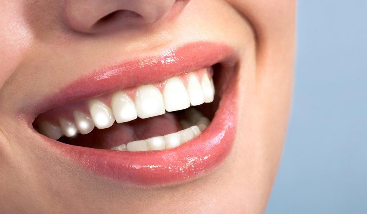 البقع البيضاء في الأسنان In 2020