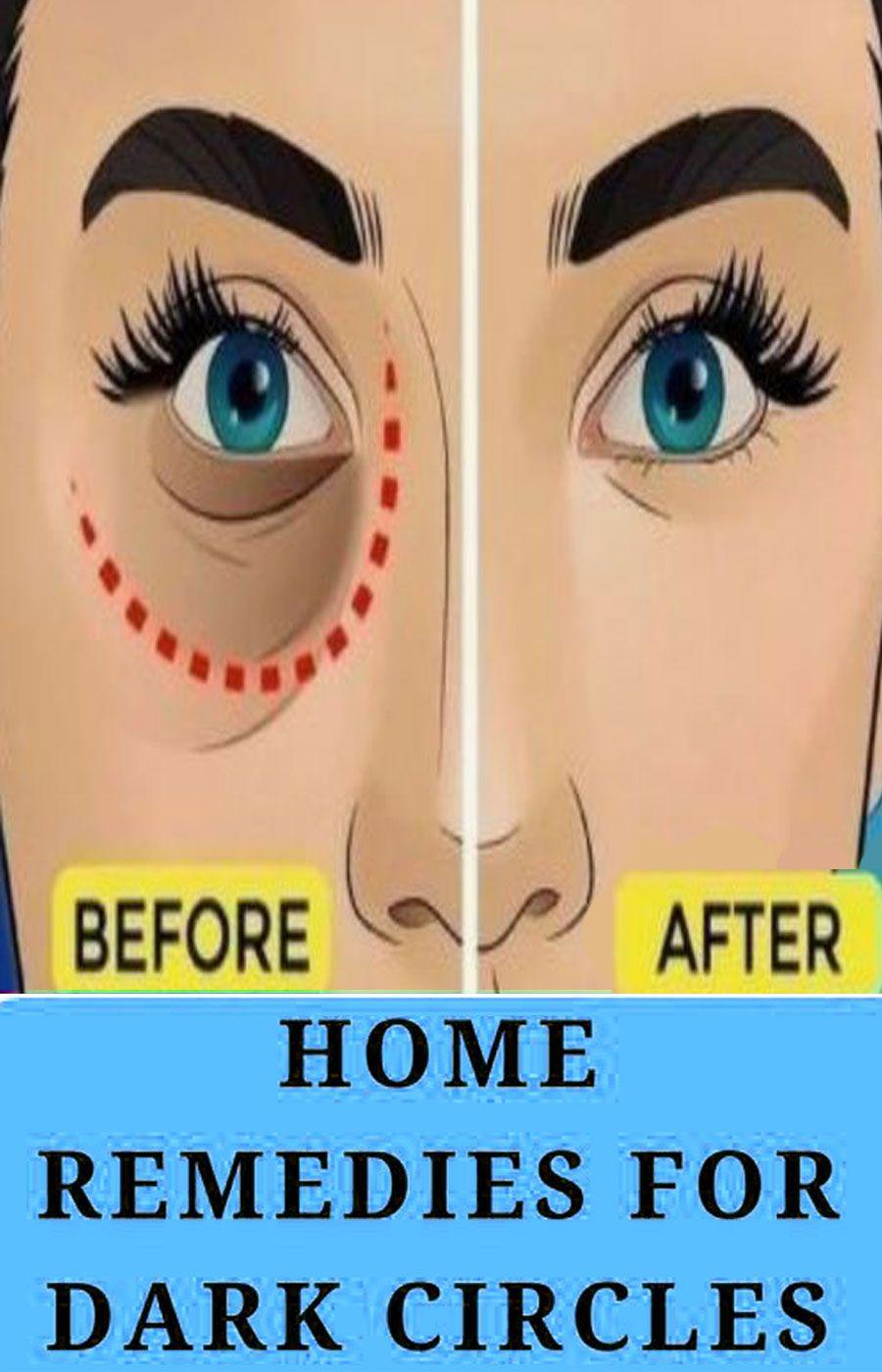 78cd1e2a9a9824ae43357ad47c179b72 - How To Get Rid Of Black Eyes From No Sleep