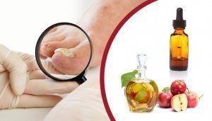 Do topical nail fungus treatments work? #ToenailFungusTreatmentVicksVaporRub ID: 6 ...   - Nail Fung...