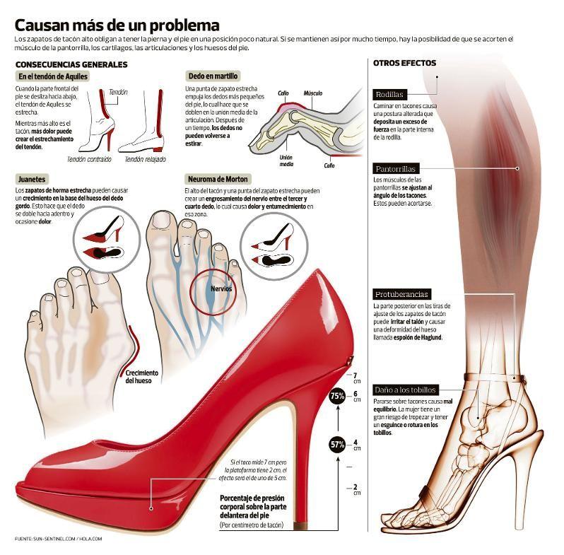 66e3e878c problemas zapatos de tacón | Zapatos cómodos | Health, nutrition ...