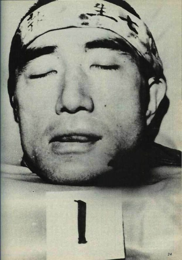 Mishima Yukio committed seppuku. Afterwards, his lover cut his head off.