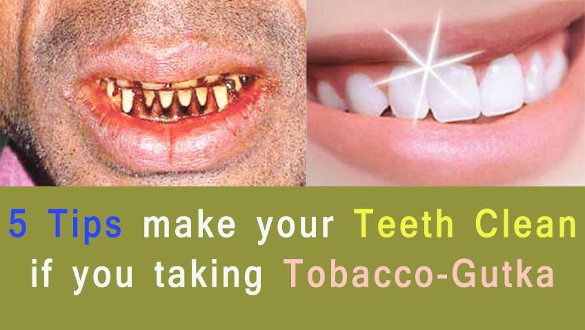 78d81256b70699a38187b052f658622a - How To Get Rid Of Black Stains On Your Teeth
