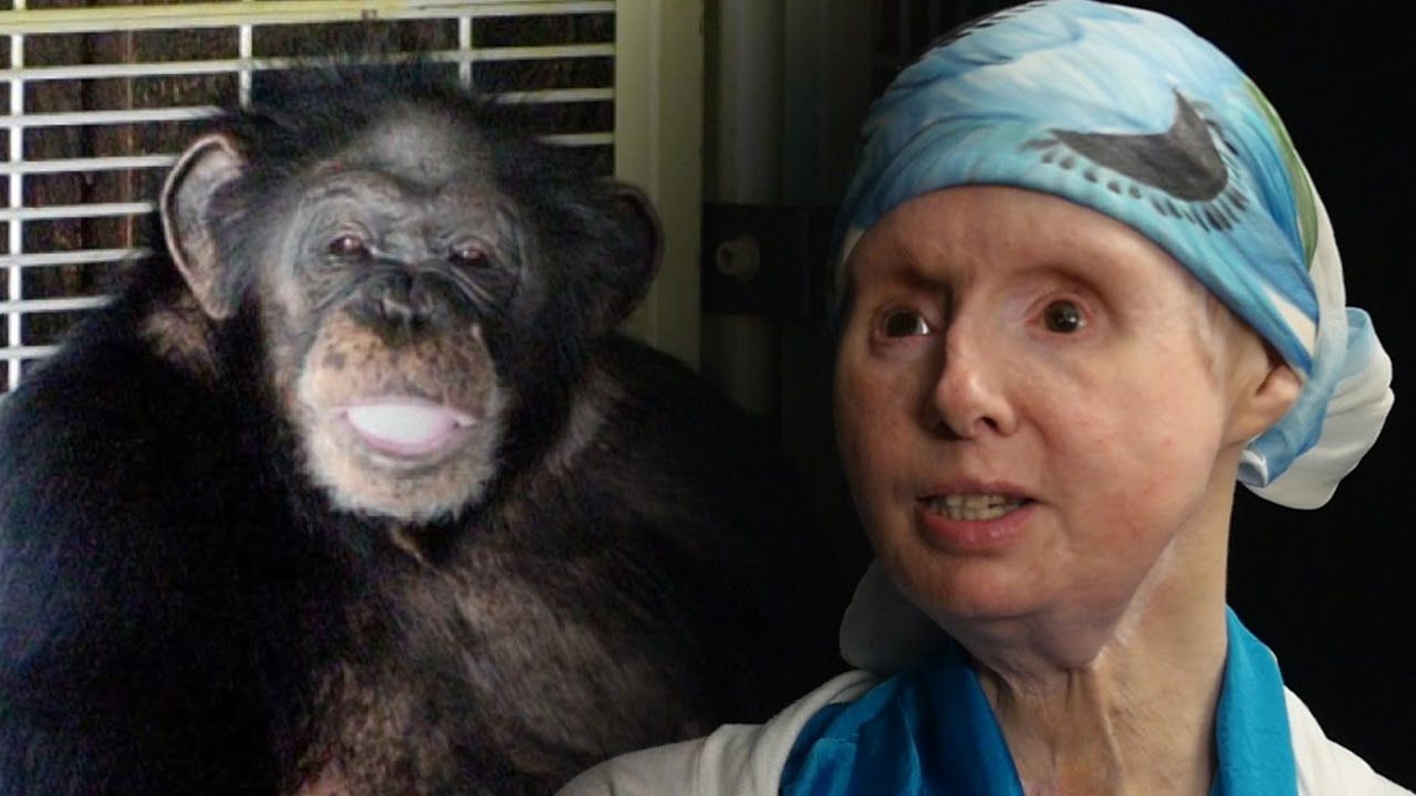 Charla Nash, Victim Of Chimpanzee Attack, Speaks Out For