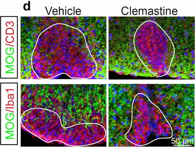 Replacing Myelin Protects Neurons and Restores Function in Multiple Sclerosis: Mouse Study