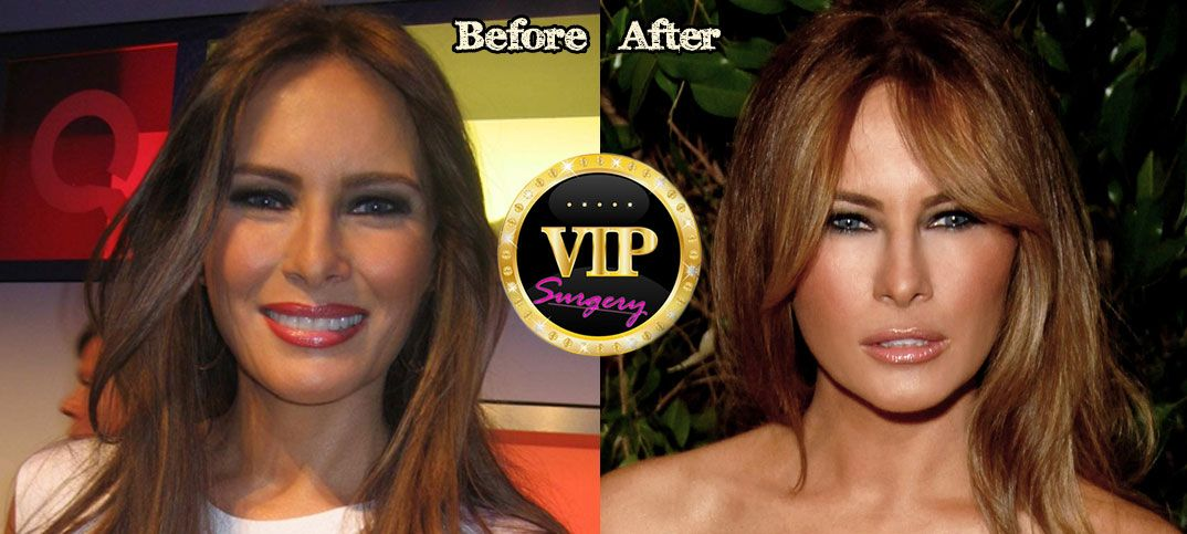 Melania Trump Plastic Surgery Before And After Photos -8518