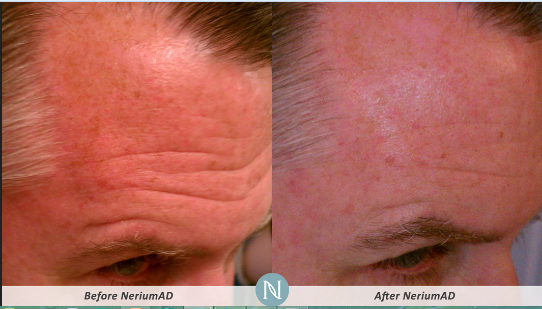 The Nerium AD 90 Day challenge Incredible results!