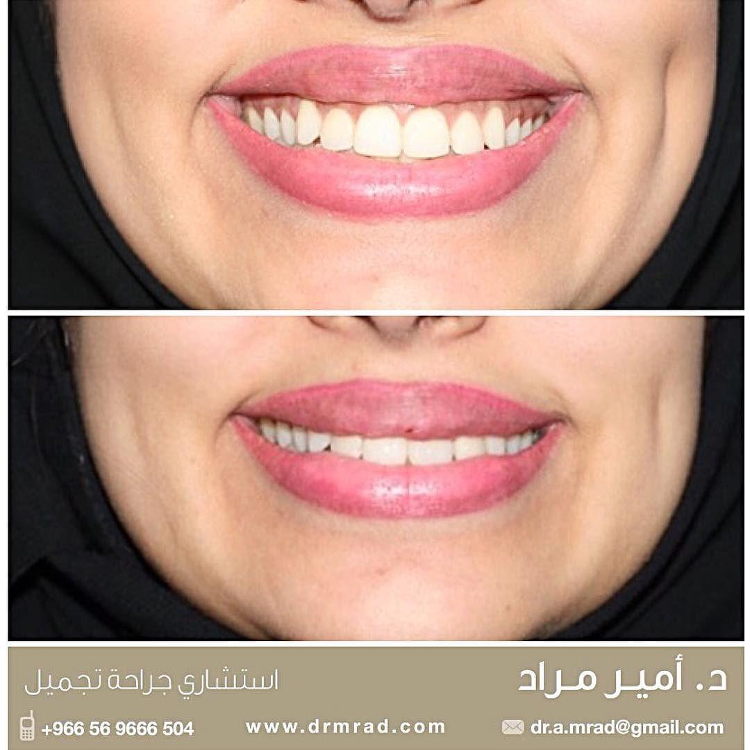 يمكن معالجة الابتسامة اللثوية بعدة طرق أبسطها كما هو موضح بالصورة استخدام البوتكس و الفيلر وفي الحالات المتوسطة يمكن خياطة اللثة أما الحالا Beauty Detail