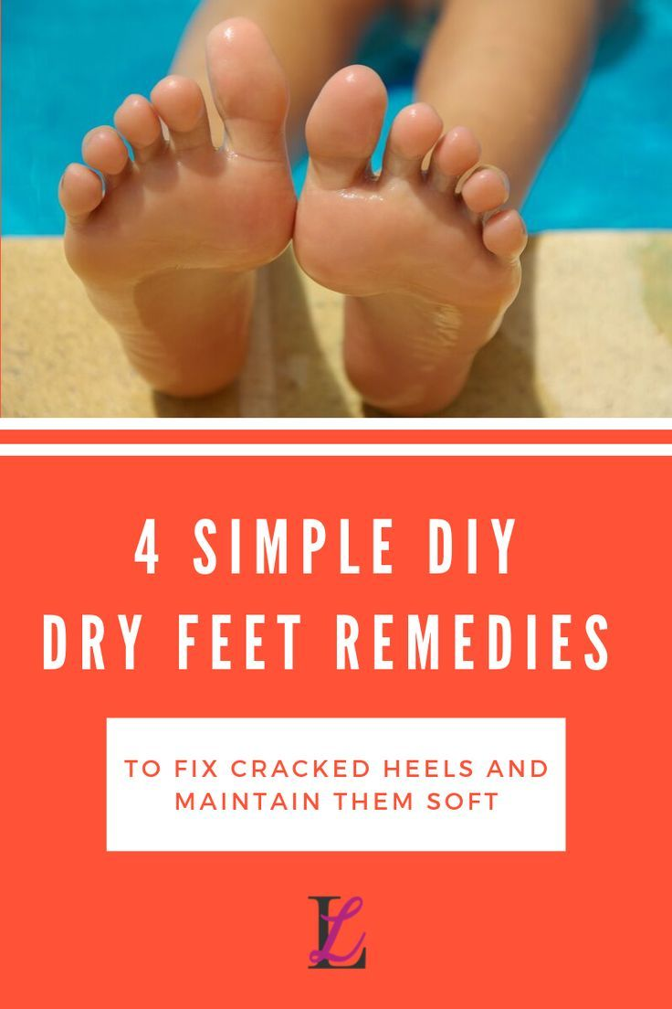 Dry feet and cracked heels? Here are 4 tips to help you