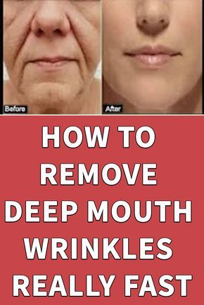 HOW TO REMOVE DEEP MOUTH WRINKLES REALLY FAST Just