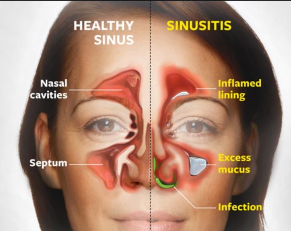Are You Ready For Allergy Season And Sinus Congestion Check Out Our Blog Posting At Www Lymphbalance Sinusitis Sinus Infection Remedies Sinus Infection Cure