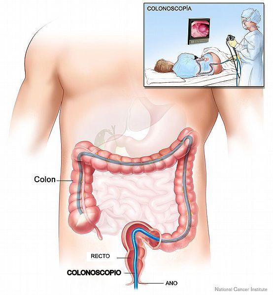 Sigmoid vastagbélrák - Vakbélgyulladás