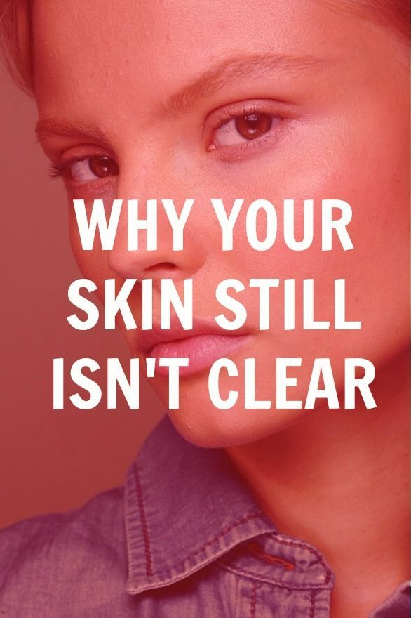 Reasons Why Your Skin Still Isn't Clear Yet | Skin Tips ...
