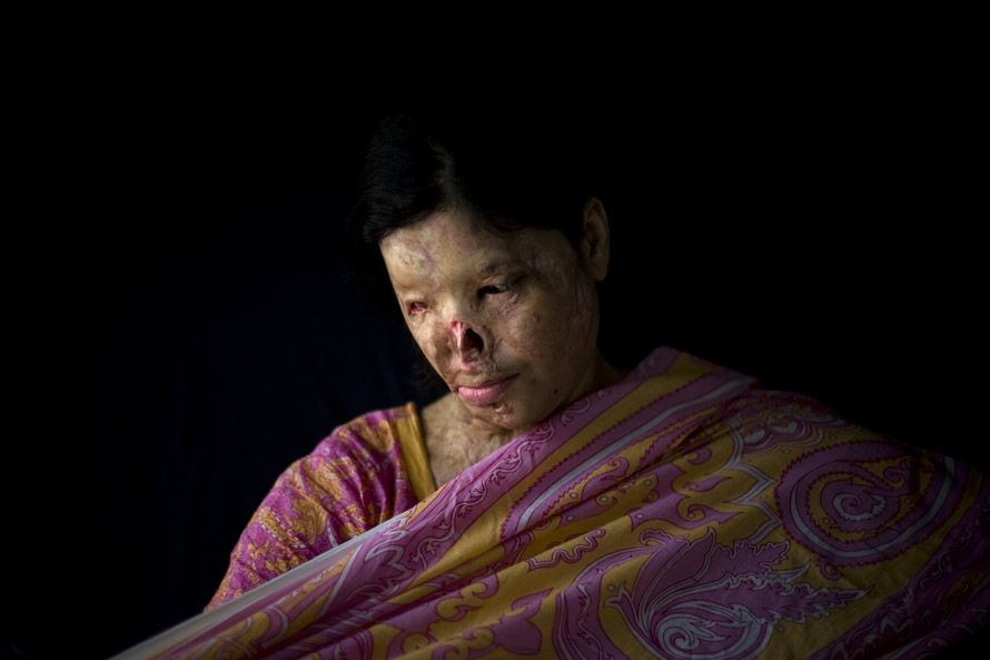 Kanwal Kayum, 26, adjusts her veil as she poses for a photograph in Lahore, Pakistan, Sunday, Oct. 26, 2008. Kanwal was burned with acid by a boy whom she rejected for marriage. She has never undergone plastic surgery.