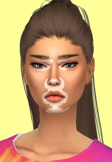 Sims4 Only Vitiligo Sims Sims 4 Collections