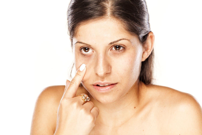 Beauty SOS How To Reduce Dark Circles & Puffy Eyes