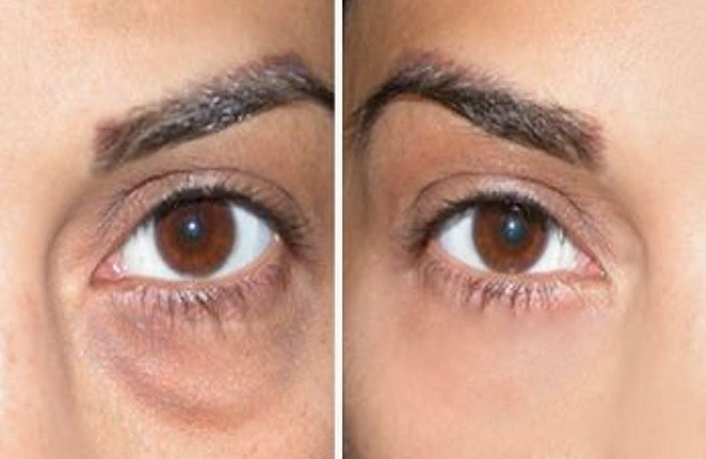 how to get rid of sunken eyes and bags