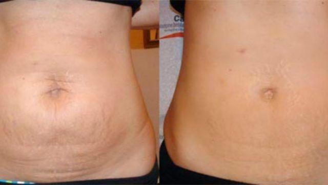 Piel flacida abdomen por embarazo