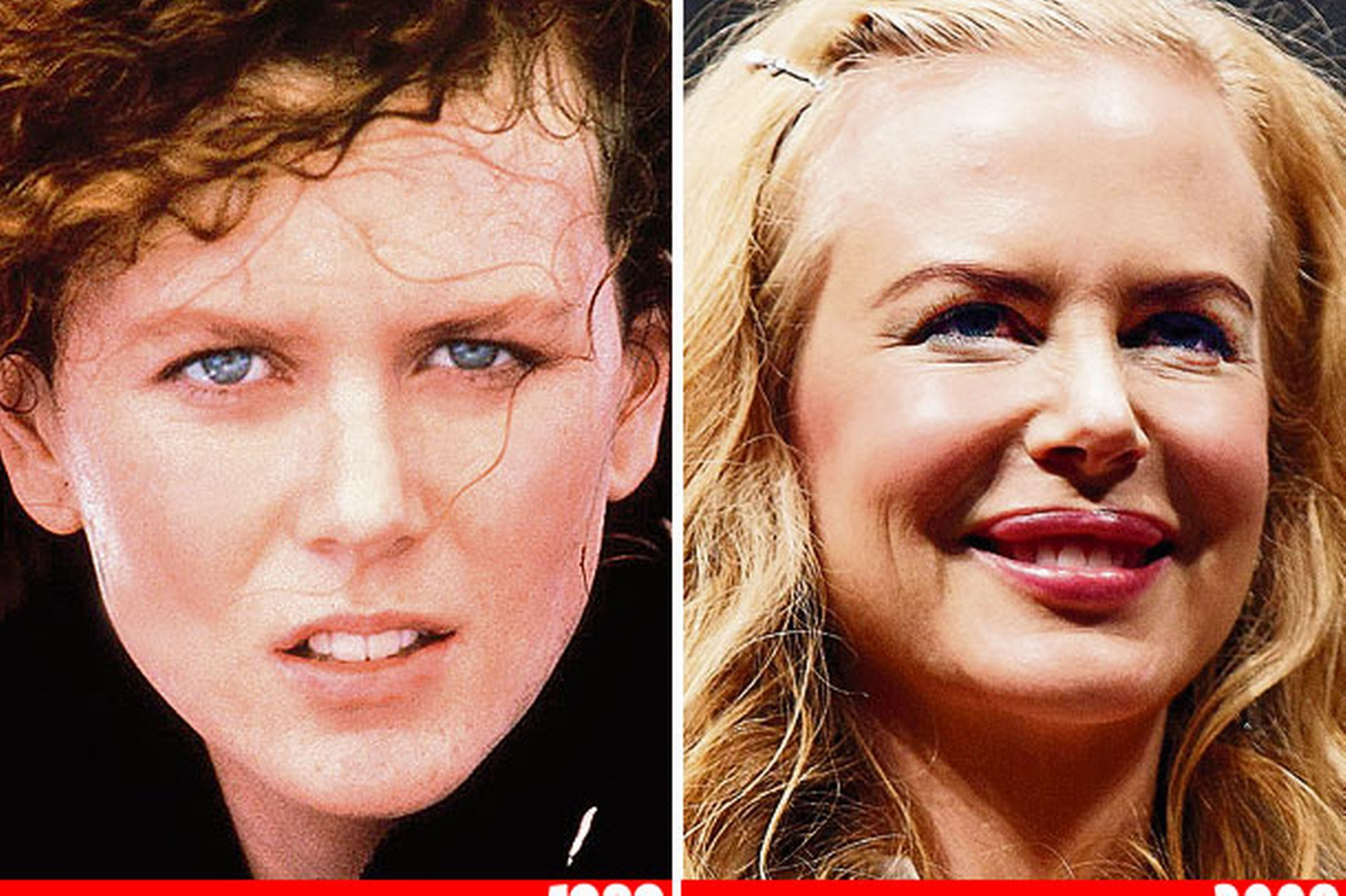 Which celebrities have had cosmetic surgery