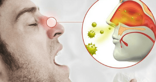 curar rinitis de forma natural