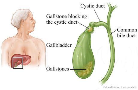 Dissolve Gallstones - Treatment, Causes and Diet ...
