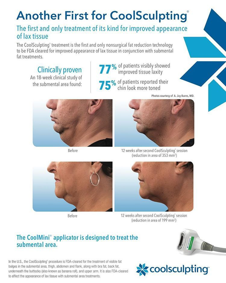 Coolsculpting Radiance Medical Aesthetics Wellness Cool Sculpting Fractional Laser Treatment Medical Aesthetic