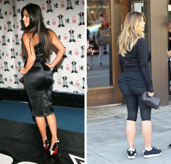 Kim Kardashian Butt Implants Plastic Surgery Before And