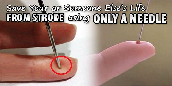 It may sound strange to you, but according to one Chinese professor, you should always have a needle in your house. The reason is that a needle can save a patient's life in case of a stroke. Saving a man from a stroke with the help of a needle is an amazing and unconventional way. …