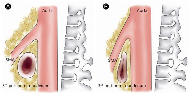 SMA syndrome Med Pinterest Superior mesenteric artery syndrome - sma syndrome