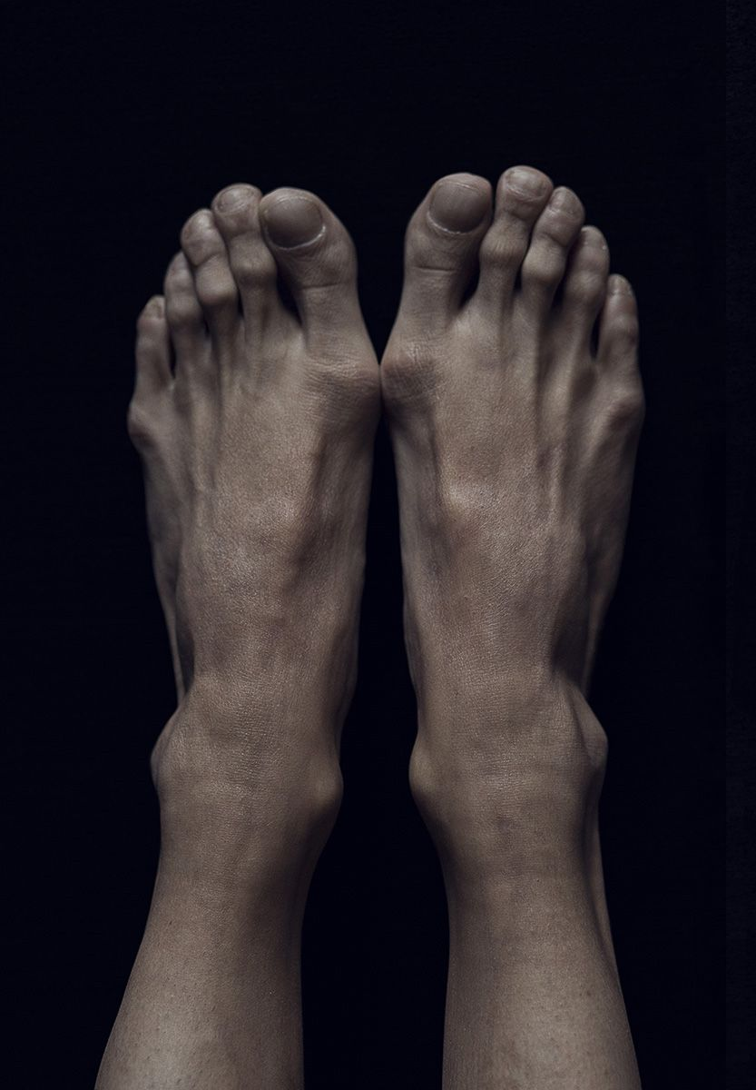 Ballet feet - Paul Burch -- Add a bruised toenail and a blister or ...