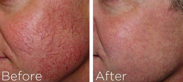 Houston facial spider veins