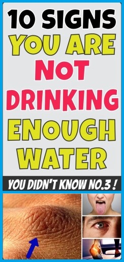 10 SIGNS YOU ARE NOT DRINKING ENOUGH WATER – Fitness Viralhoba #drinking #fitness #signs #Viralhoba...