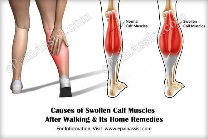 11+ Tight left calf muscle inspirations