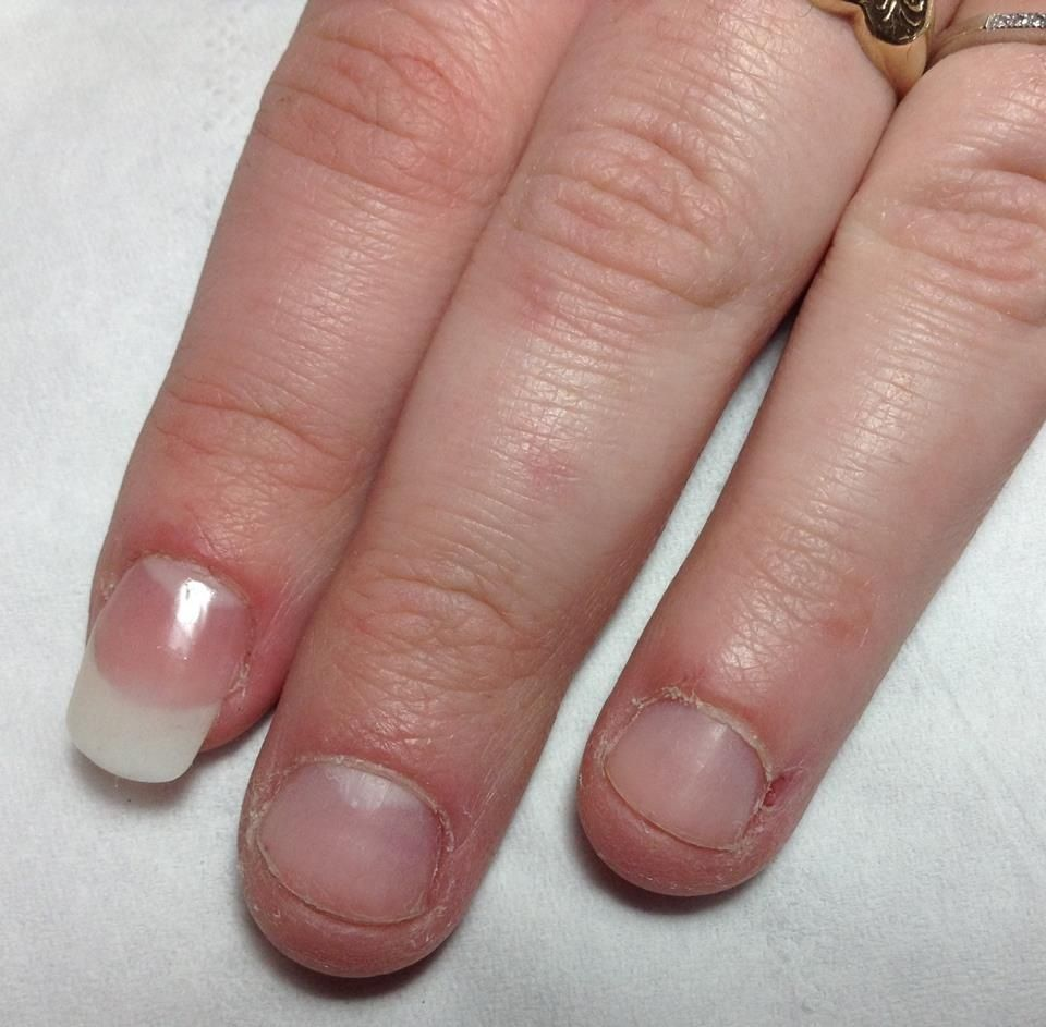 Nail Technician: Emily Westwood using Bio-Sculpture Nail biters ...