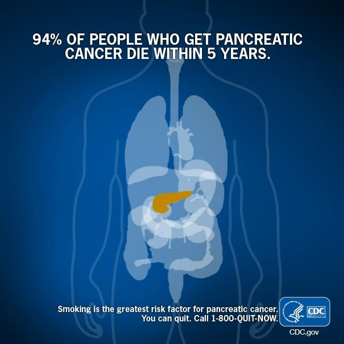 Acidul oleic poate reduce riscul de cancer pancreatic?