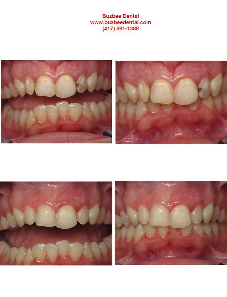 If You Have This Filling In Your Tooth Remove It Immediately Fitness And Beauty Tips Health And Beauty Tips Heath And Fitness
