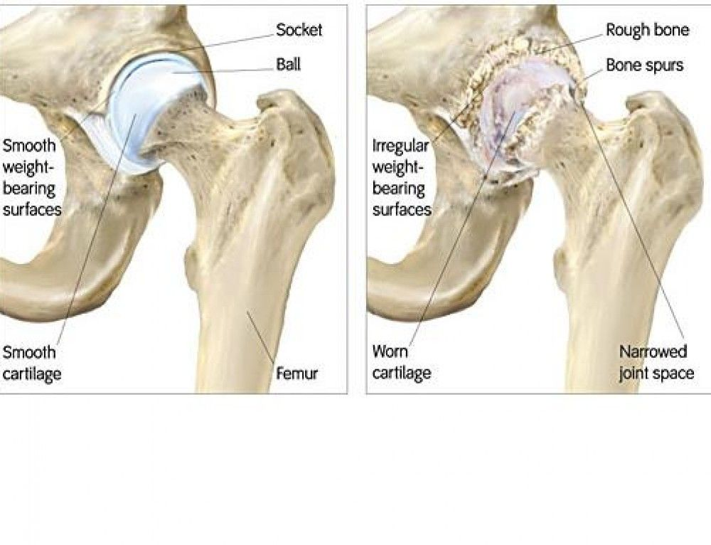 Pin On Hip Replacement
