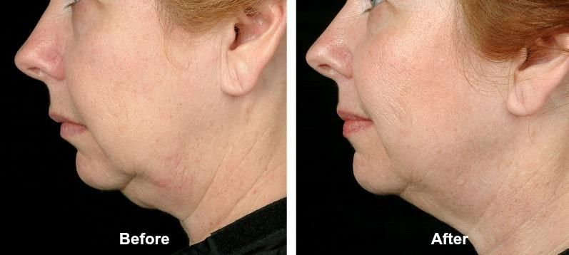 Thermage | Philadelphia | Face products skincare, Face skin care, Skin  tightening treatments