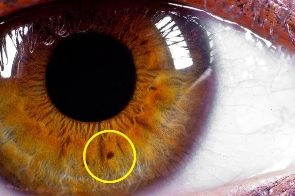 what do brown spots in the iris mean