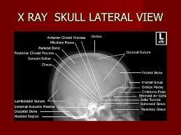 lateral view of skull x ray에 대한 이미지 검색결과 | Tech school ... X Ray Views Of Skull