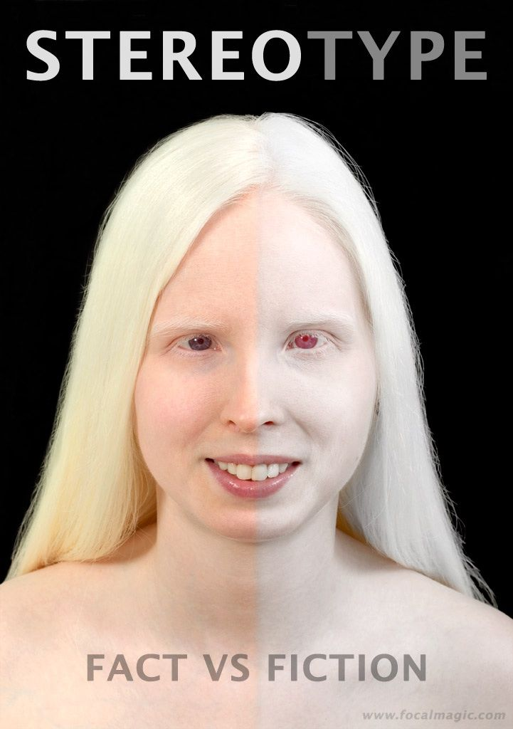 Image result for violet eyes albino | Random Things ...