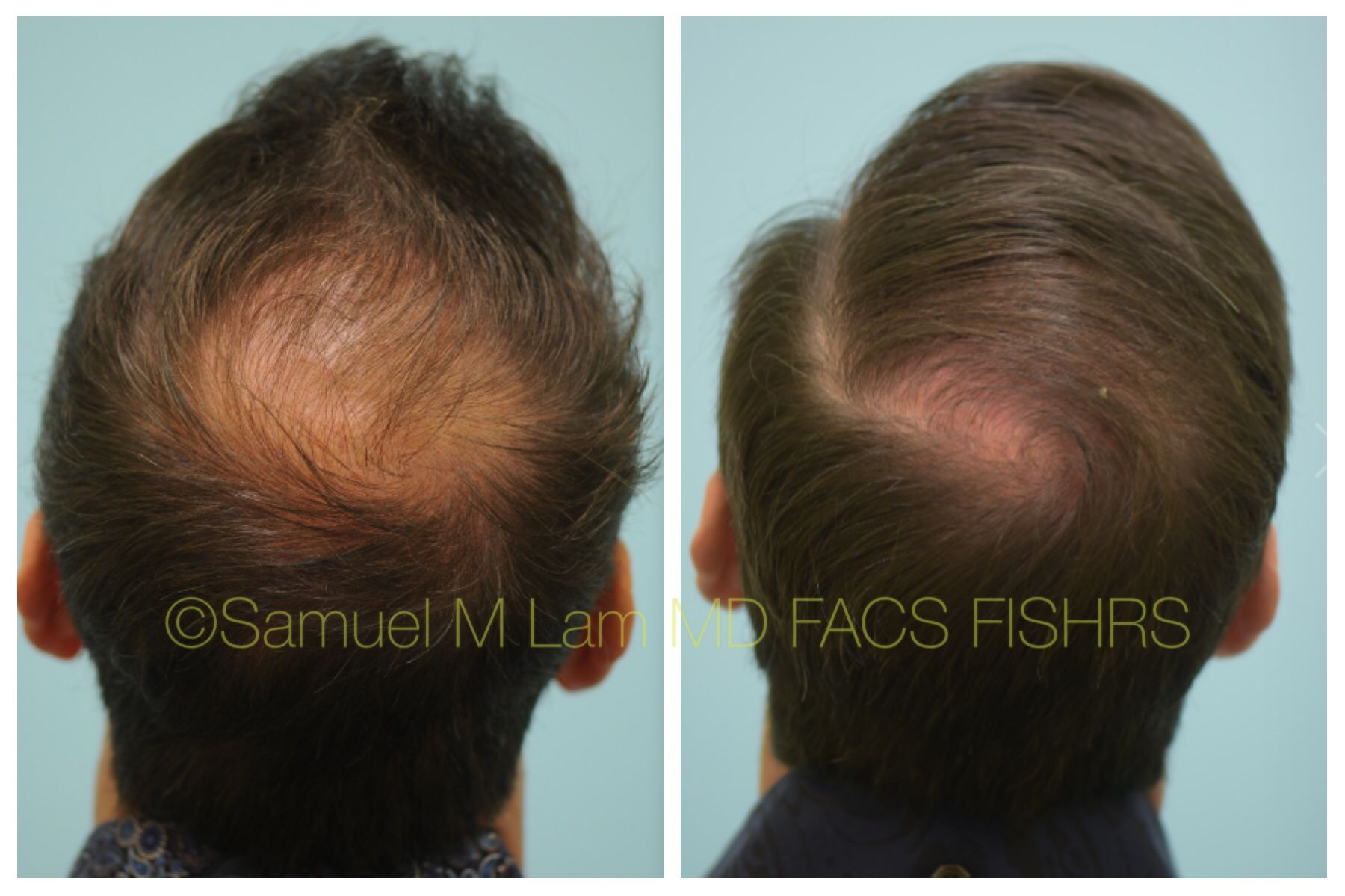 This Gentleman Had Ual Side Effects From Propecia And Was On Only Rogaine Minoxidil Before He Is Shown 5 Months After Starting Topical