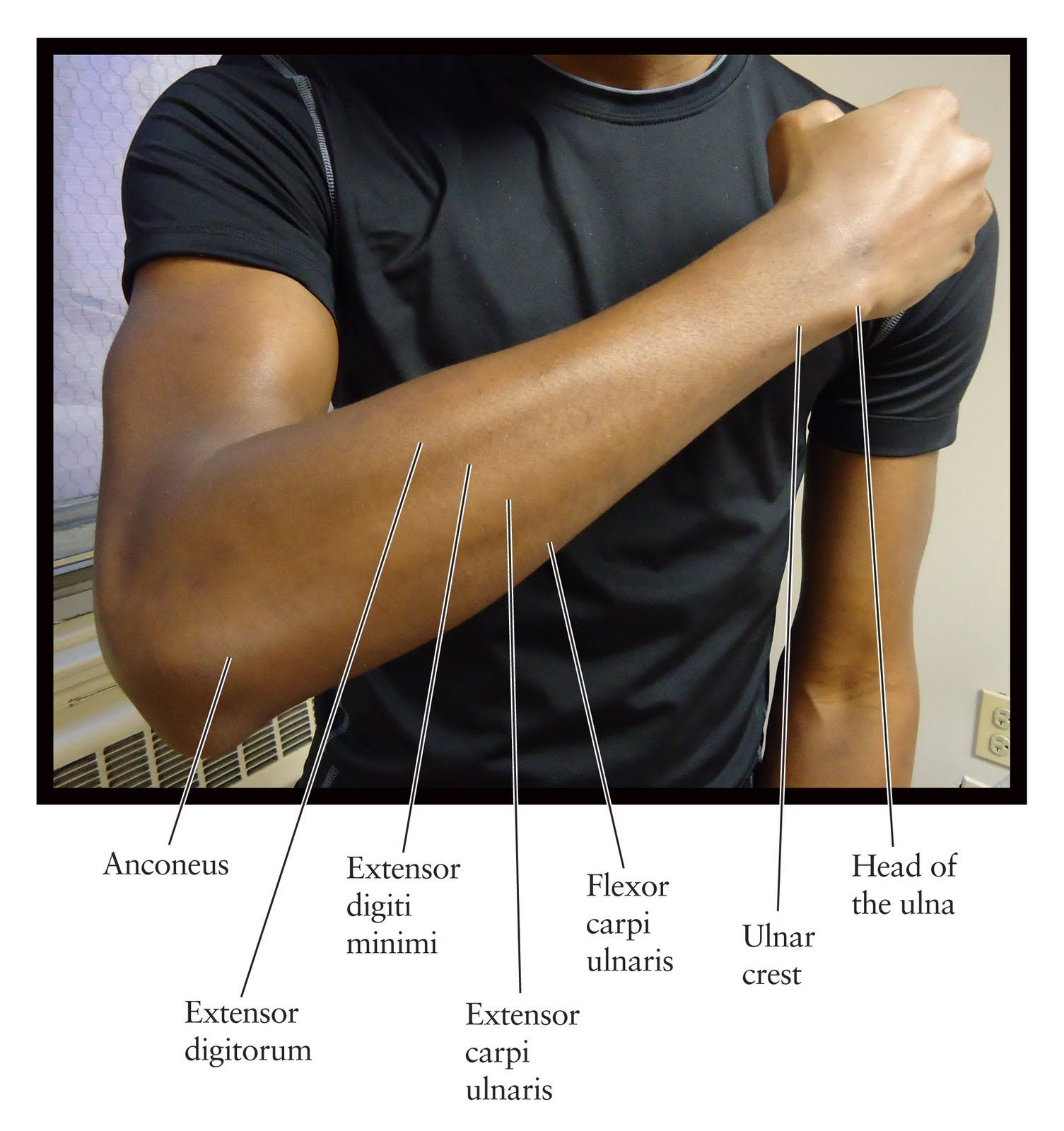 The Dorsal Forearm Part 1 Compartment Search