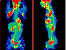 Augustus described his PET scan as being lit up like a Christmas tree. This is when Hazel ...